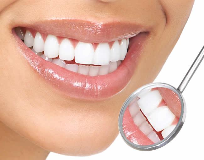 Karbonat İle Diş Nasıl Temizlenir?